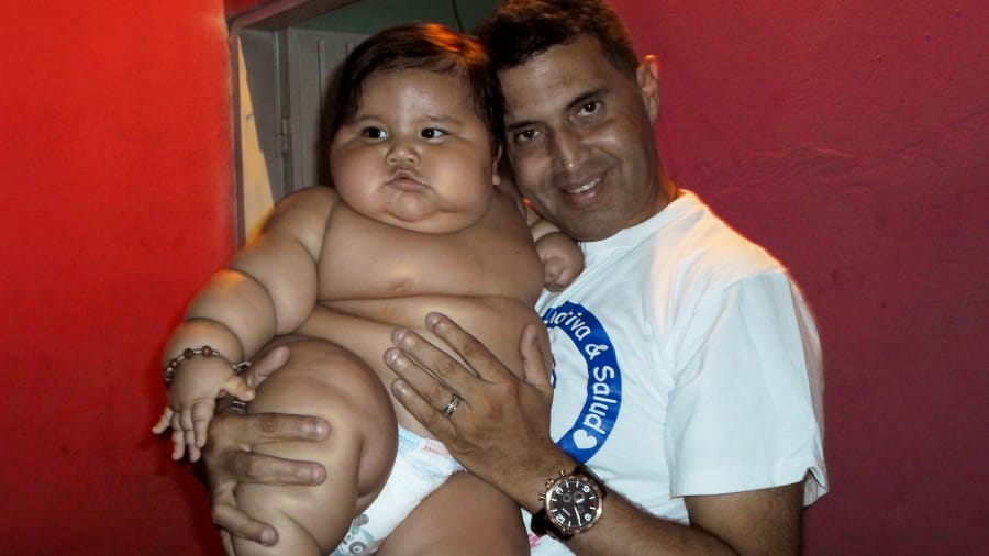 Body Bizarre - My Baby Weighs 47 Pounds