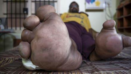 Body Bizarre - My Leg Weighs 200 Pounds