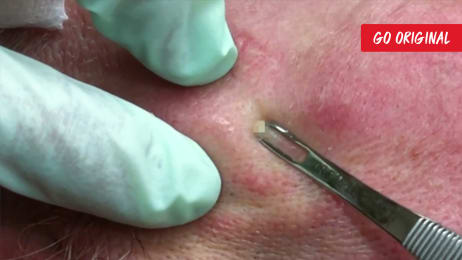 A Rock Hard Dilated Pore Of Winer | Dr  Pimple Popper: This is Zit