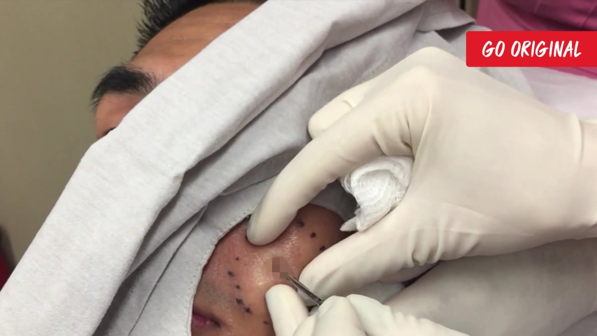 dr. pimple popper season 3 episode 6