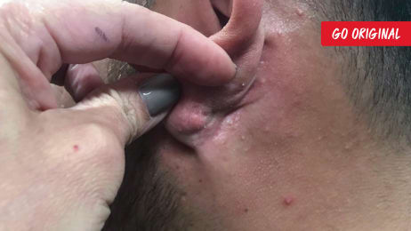 A Rock Hard Dilated Pore Of Winer | Dr  Pimple Popper: This