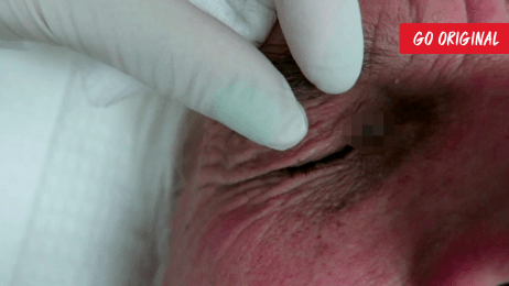 Destroying this Grape Keloid with Frostbite | Dr  Pimple Popper