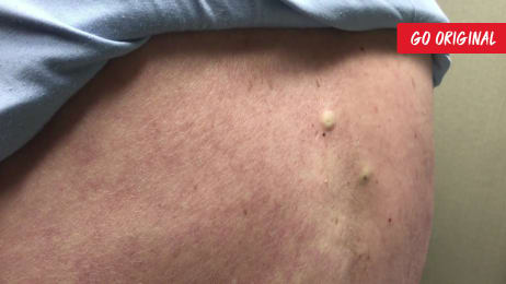 New Mom's Inflamed Cyst | Dr  Pimple Popper: This is Zit