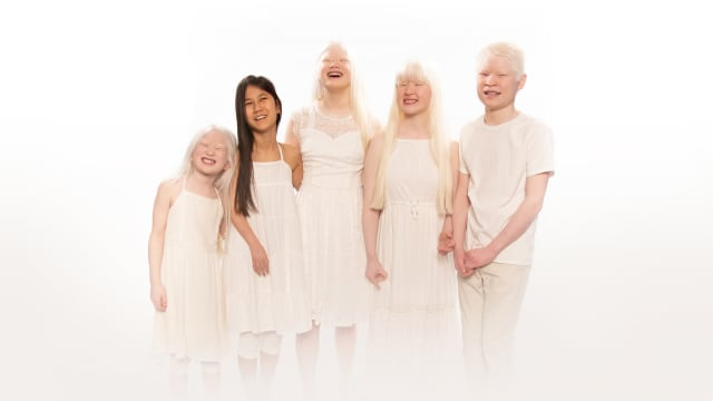 Born With Albinism on FREECABLE TV